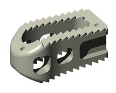 ALEUTIAN® Posterior-Lumbar (PLIF) Interbody System