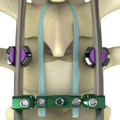 NILE® Proximal Fixation Spinal System