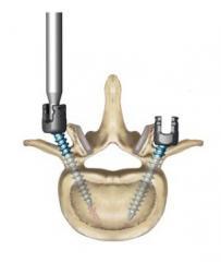 DENALI® Degenerative Spinal System